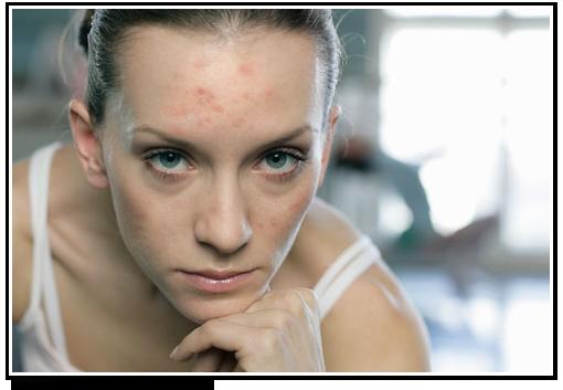 pms-acne