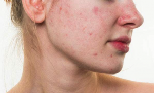 Girls Cystic Acne During Period You Ve Got To Read This